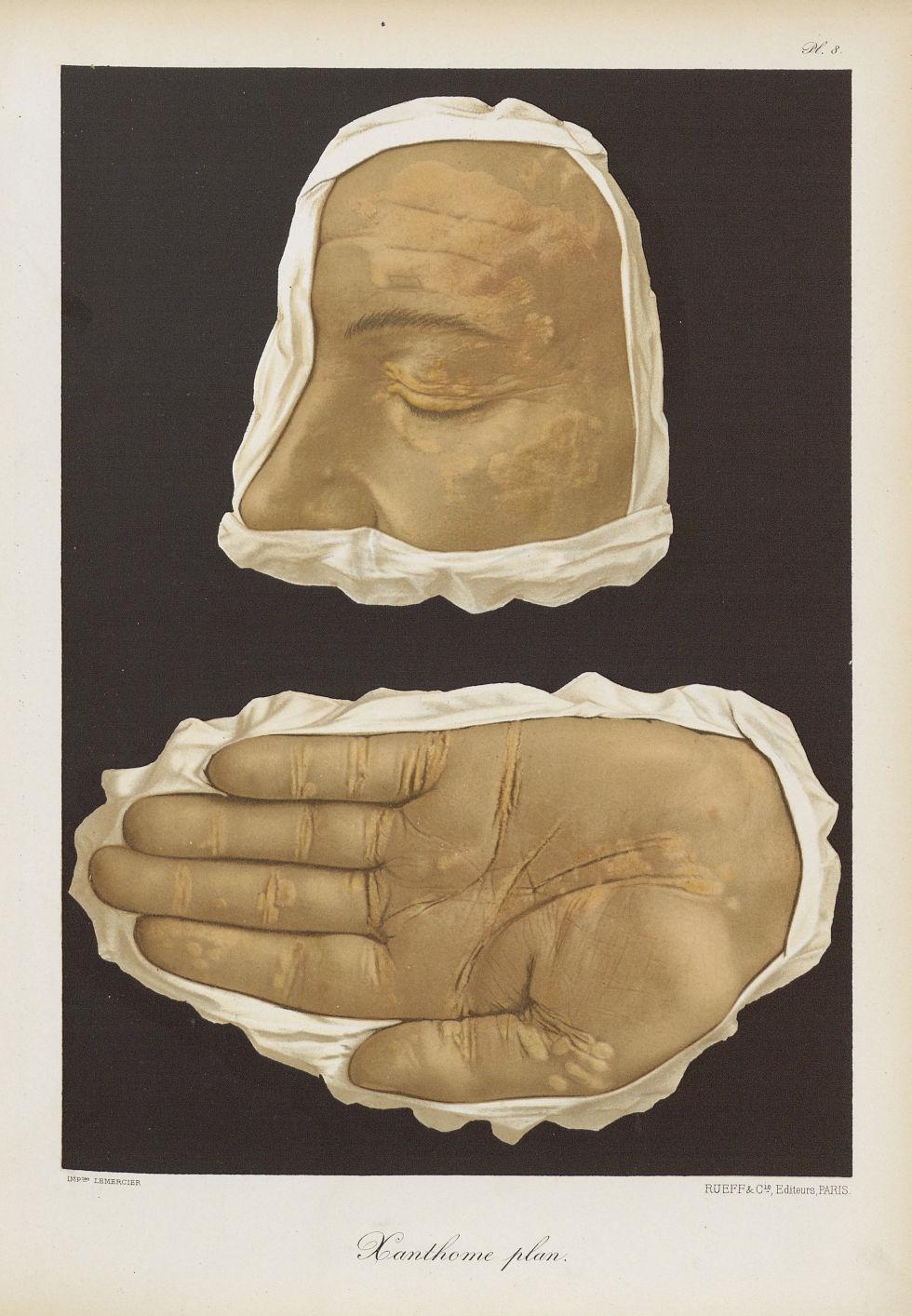 Xanthome plan - Dermatologie (peau). Visages (têtes). 19e siècle (France) - med01740x0072