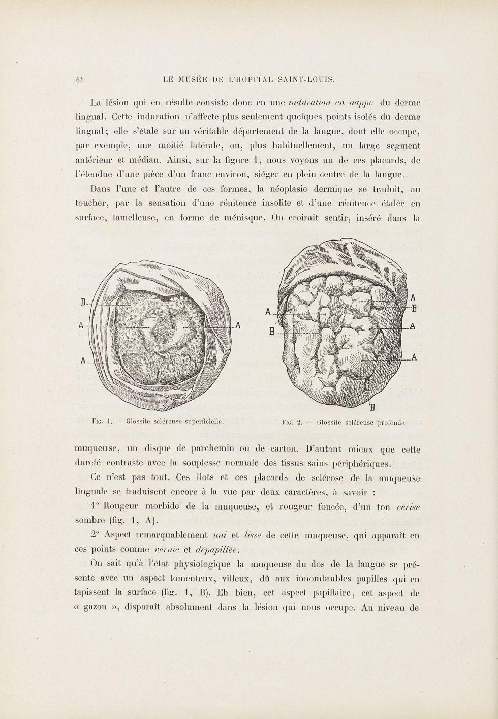 Fig. 1. Glossite scléreuse superficielle / Fig. 2. Glossite scléreuse profonde [Syphilis linguale] - [...] - Dermatologie (peau). Syphilis (maladies infectieuses). Maladies sexuellement transmissibles. Langues (bouches). 19e siècle (France) - med01740x0080