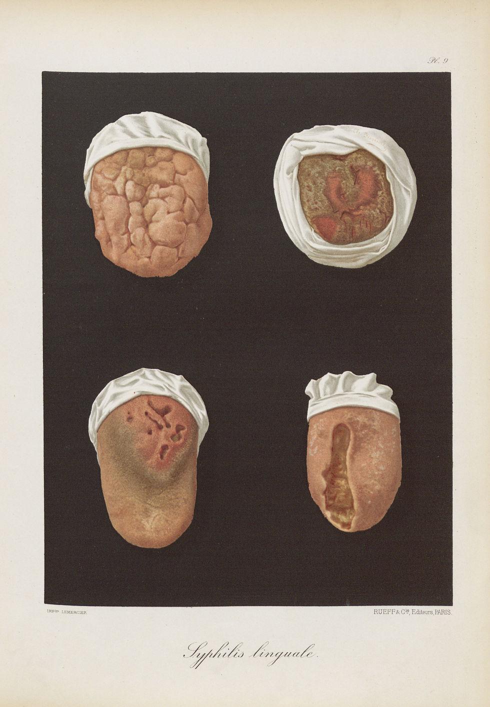 Syphilis linguale - Le musée de l'hôpital Saint-Louis : iconographie des maladies cutanées et syphil [...] - Dermatologie (peau). Syphilis (maladies infectieuses). Maladies sexuellement transmissibles. Langues (bouches). 19e siècle (France) - med01740x0081