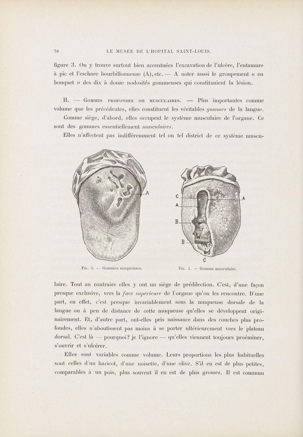 Fig. 3. Gommes muqueuses / Fig. 4. Gomme musculaire [Syphilis linguale] - Le musée de l'hôpital Sain [...] - Dermatologie (peau). Syphilis (maladies infectieuses). Maladies sexuellement transmissibles. Langues (bouches). 19e siècle (France) - med01740x0087