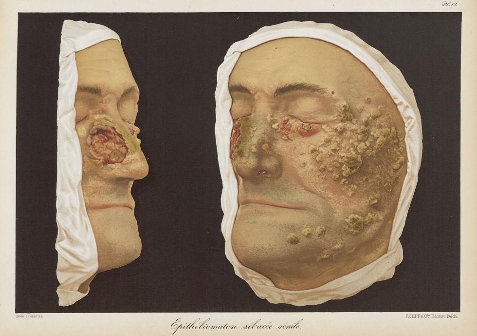 Epitheliomatose sébacée sénile - Le musée de l'hôpital Saint-Louis : iconographie des maladies cutan [...] - Dermatologie (peau). Visages (têtes). 19e siècle (France) - med01740x0108