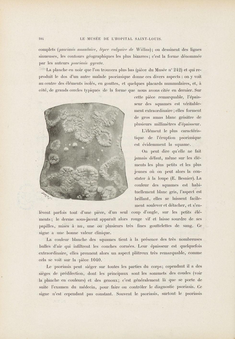 [Psoriasis] - Le musée de l'hôpital Saint-Louis : iconographie des maladies cutanées et syphilitique [...] - Dermatologie (peau). Dos. 19e siècle (France) - med01740x0125