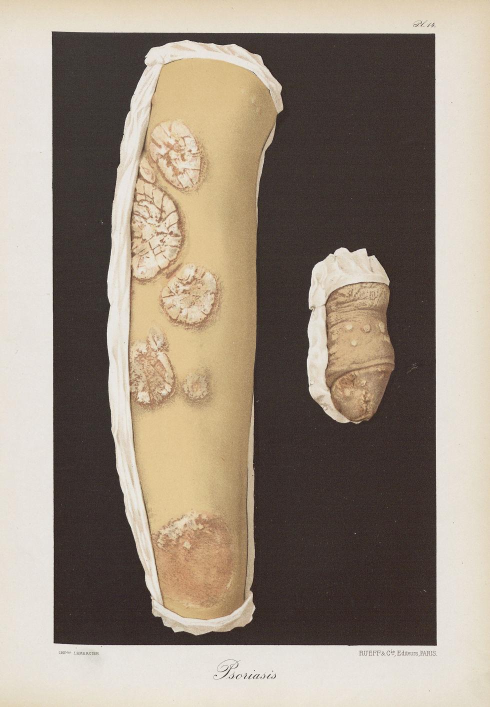 Psoriasis - Le musée de l'hôpital Saint-Louis : iconographie des maladies cutanées et syphilitiques  [...] - Dermatologie (peau). Membre supérieur. Bras, coudes. Organes génitaux mâles. Pénis. 19e siècle (France) - med01740x0126
