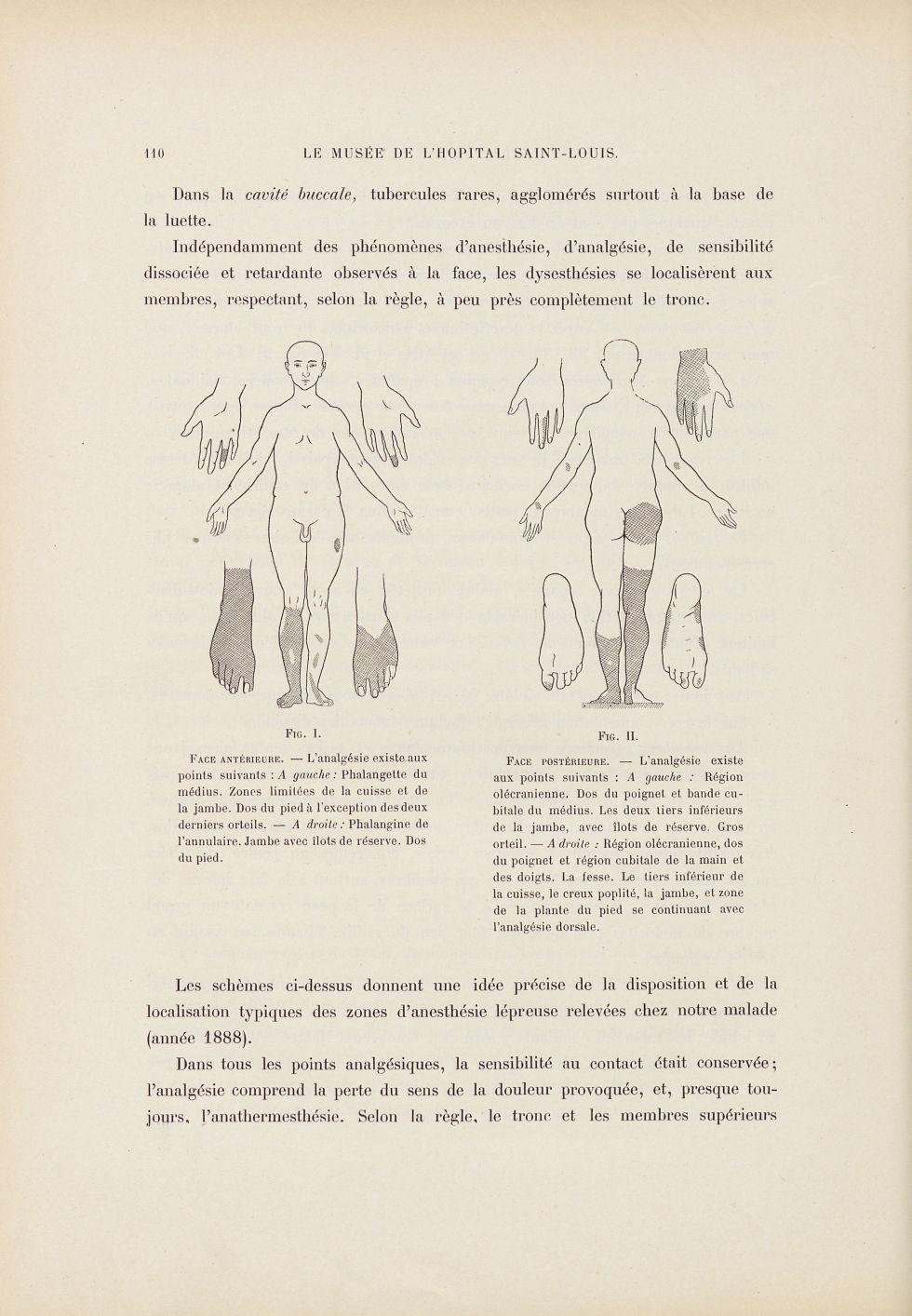 Fig. 1 et 2. Disposition et localisation typiques des zones d'anesthésie lépreuse relevées chez notr [...] - Dermatologie (peau). Lèpre. Sensations. Douleur. 19e siècle (France) - med01740x0132