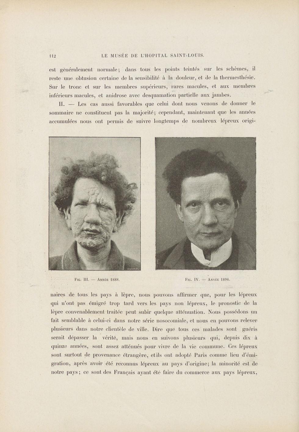 Fig. 3. Année 1888 / Fig. 4. Année 1896 - Le musée de l'hôpital Saint-Louis : iconographie des malad [...] - Dermatologie (peau). Lèpre. Pilosité. Cheveux. 19e siècle (France) - med01740x0134