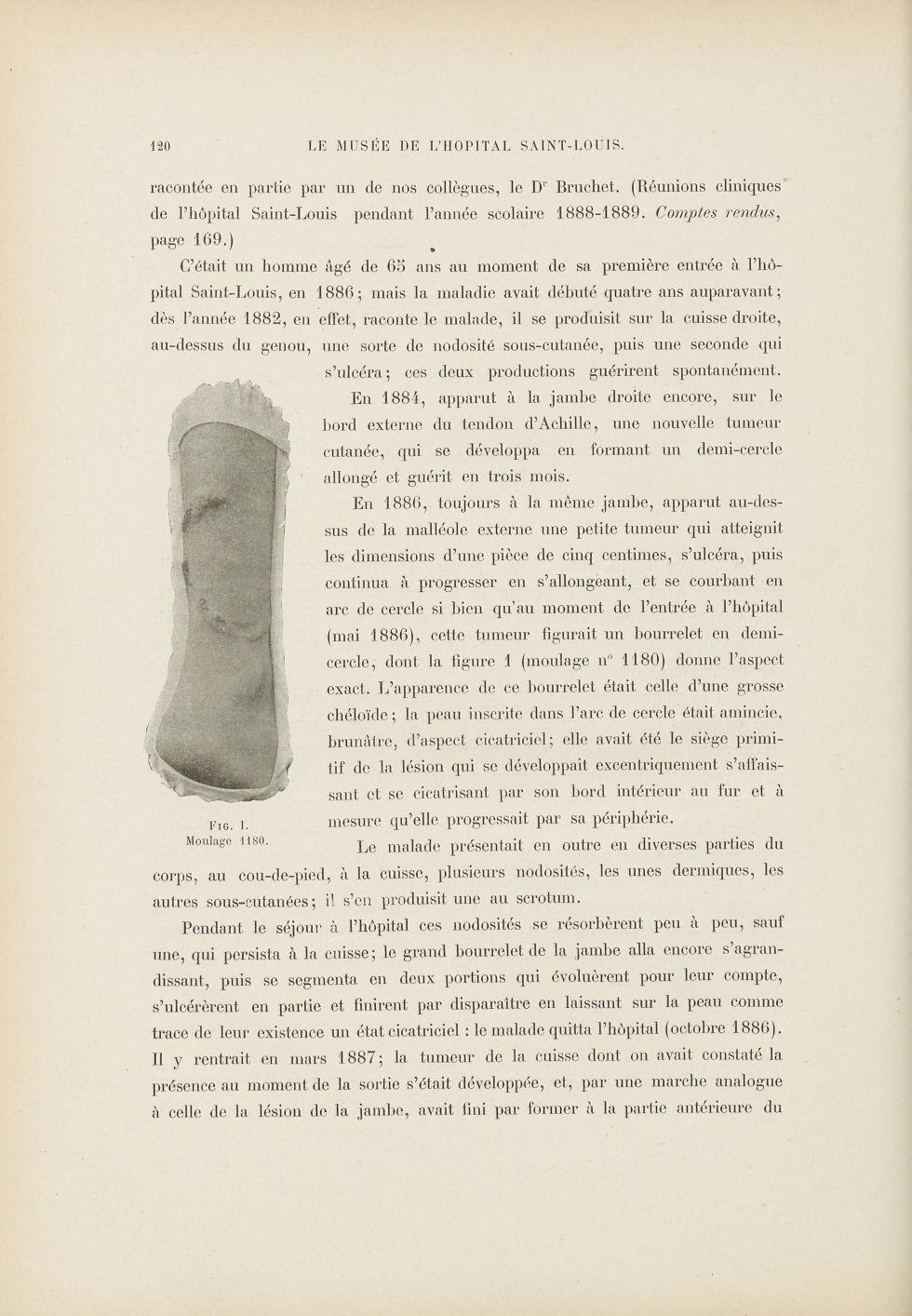 Fig. I. Bourrelet en demi-cercle formé par une tumeur à la jambe droite d'un malade atteint de mycos [...] - Dermatologie (peau). Grosseurs et tuméfactions. Tumeurs. Membres inférieurs. Jambes. 19e siècle (France) - med01740x0143
