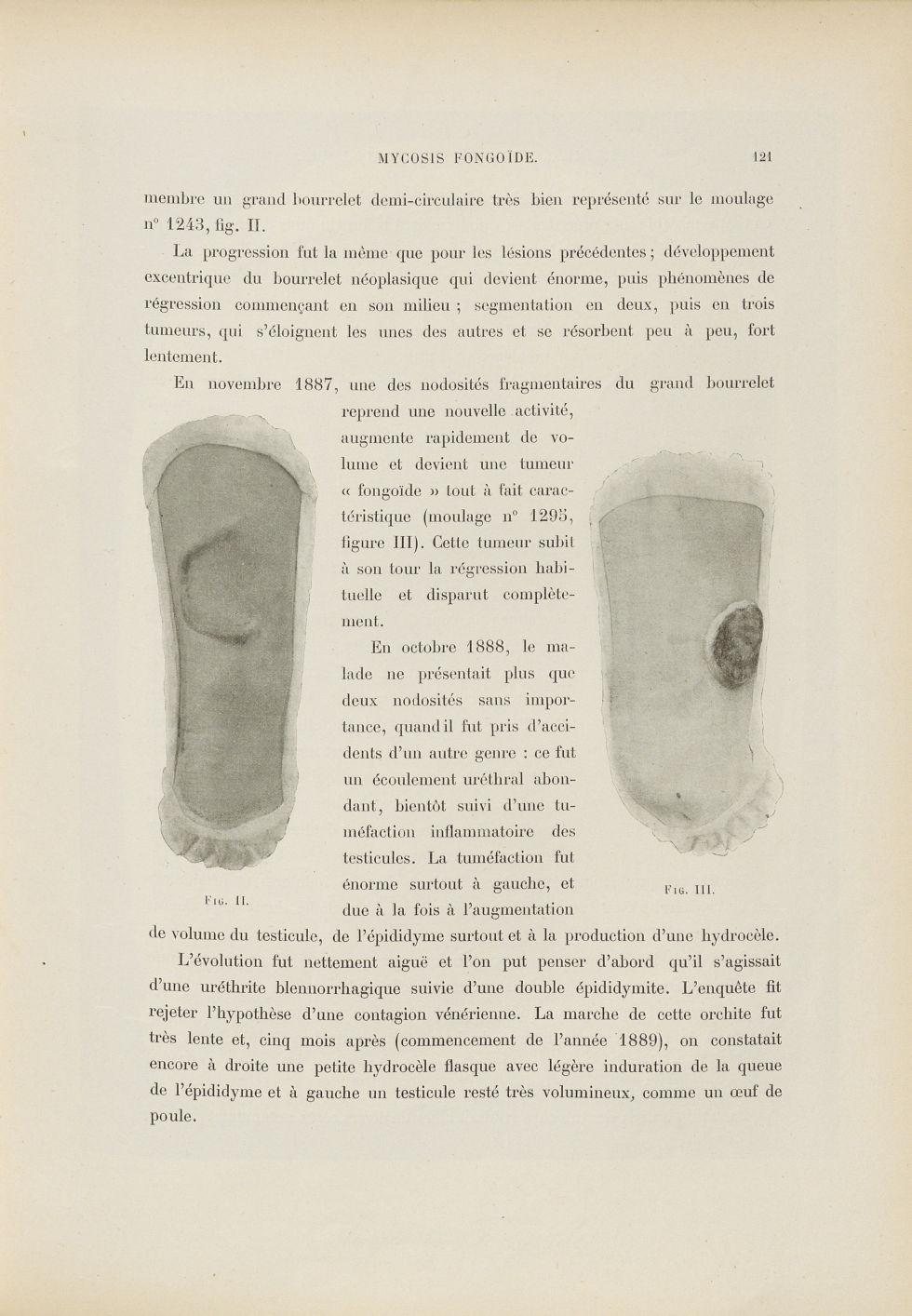 Fig. II. Grand bourrelet demi-circulaire [tumeur à la cuisse chez un malade atteint de mycosis fongo [...] - Dermatologie (peau). Grosseurs et tuméfactions. Tumeurs. Membres inférieurs. Cuisses. 19e siècle (France) - med01740x0144