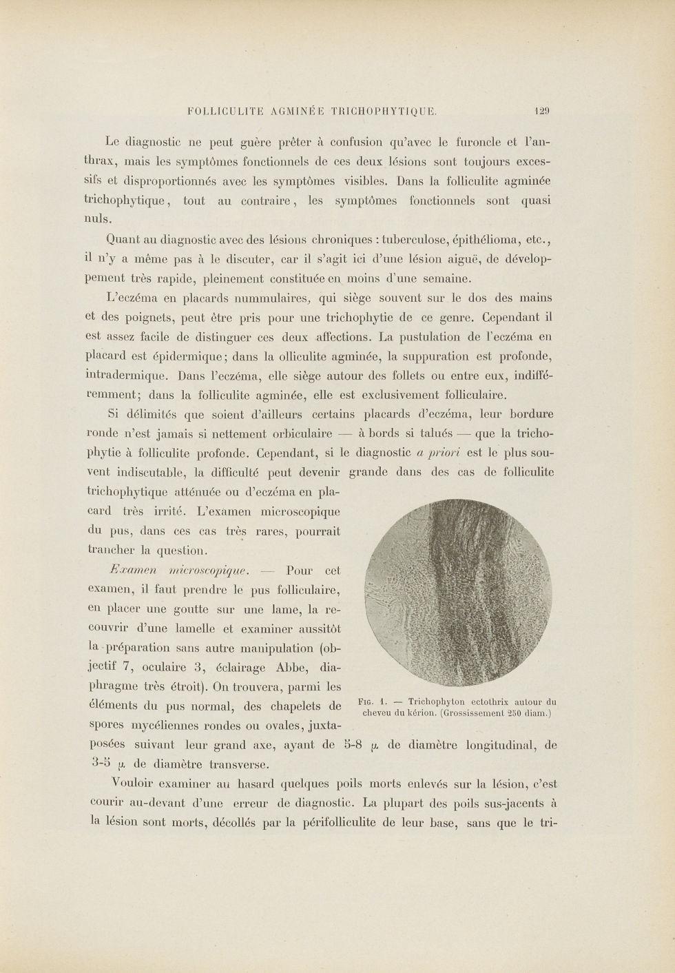 Fig. 1. Trychophyton ectothrix autour du cheveu du Kérion - Le musée de l'hôpital Saint-Louis : icon [...] - Dermatologie (peau). Microscopes (vues). Pilosité. 19e siècle (France) - med01740x0153