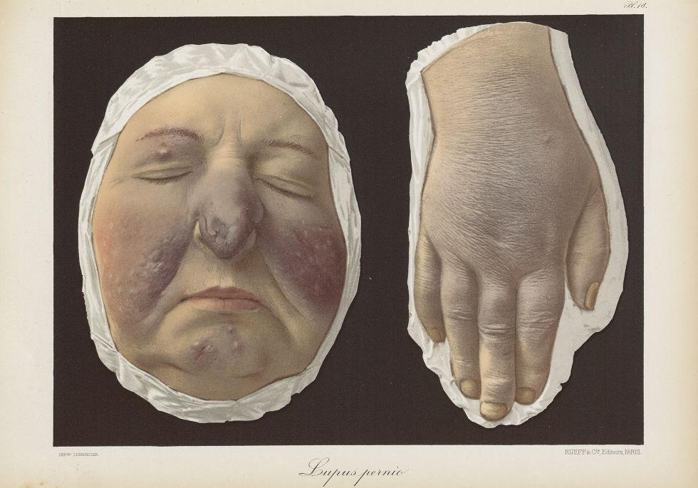 Lupus pernio - Le musée de l'hôpital Saint-Louis : iconographie des maladies cutanées et syphilitiqu [...] - Dermatologie (peau). Visages (têtes). Mains. 19e siècle (France) - med01740x0162
