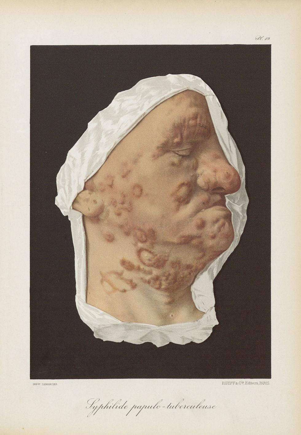 Syphilide papulo-tuberculeuse - Le musée de l'hôpital Saint-Louis : iconographie des maladies cutané [...] - Dermatologie (peau). Syphilis (maladies infectieuses). Maladies sexuellement transmissibles. Visages (têtes). 19e siècle (France) - med01740x0169