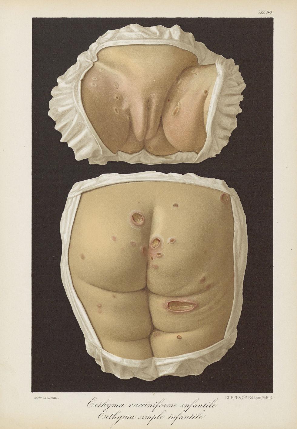 Ecthyma vacciniforme infantile. Ecthyma simple infantile - Le musée de l'hôpital Saint-Louis : icono [...] - Dermatologie (peau). Organes génitaux femelles. Fesses. 19e siècle (France) - med01740x0178