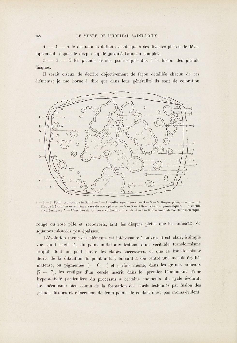 Psoriasis figuré - Le musée de l'hôpital Saint-Louis : iconographie des maladies cutanées et syphili [...] - Dermatologie (peau). 19e siècle (France) - med01740x0199