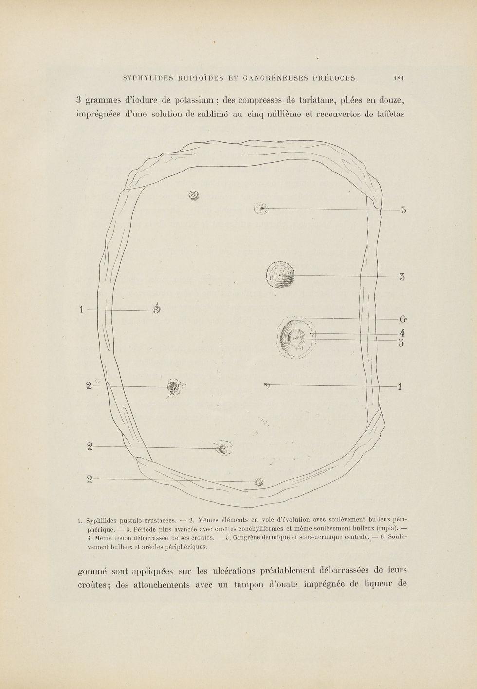Syphilide rupoïde - Dermatologie (peau). Syphilis (maladies infectieuses). Maladies sexuellement transmissibles. 19e siècle (France) - med01740x0215