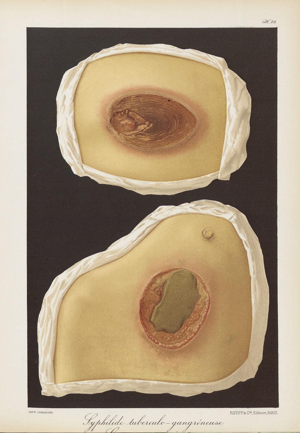 Syphilide tuberculo-gangréneuse - Le musée de l'hôpital Saint-Louis : iconographie des maladies cuta [...] - Dermatologie (peau). Syphilis (maladies infectieuses). Maladies sexuellement transmissibles. 19e siècle (France) - med01740x0224
