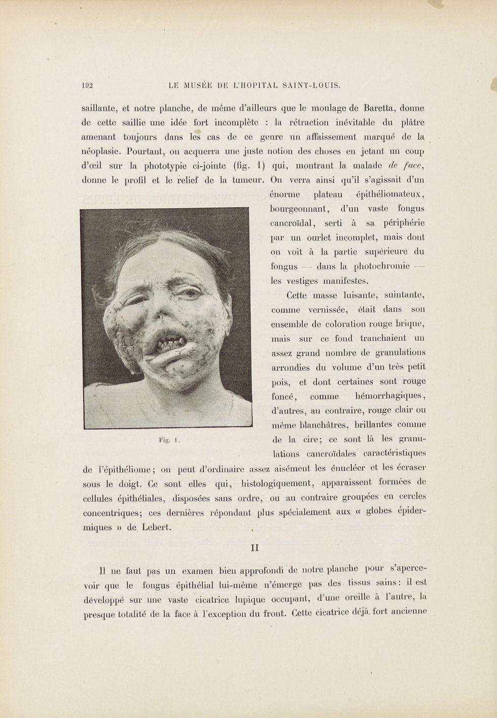 Fig. 1. Énorme épithéliome occupant la partie préauriculaire droite - Le musée de l'hôpital Saint-Lo [...] - Dermatologie (peau). Visages (têtes). 19e siècle (France) - med01740x0228
