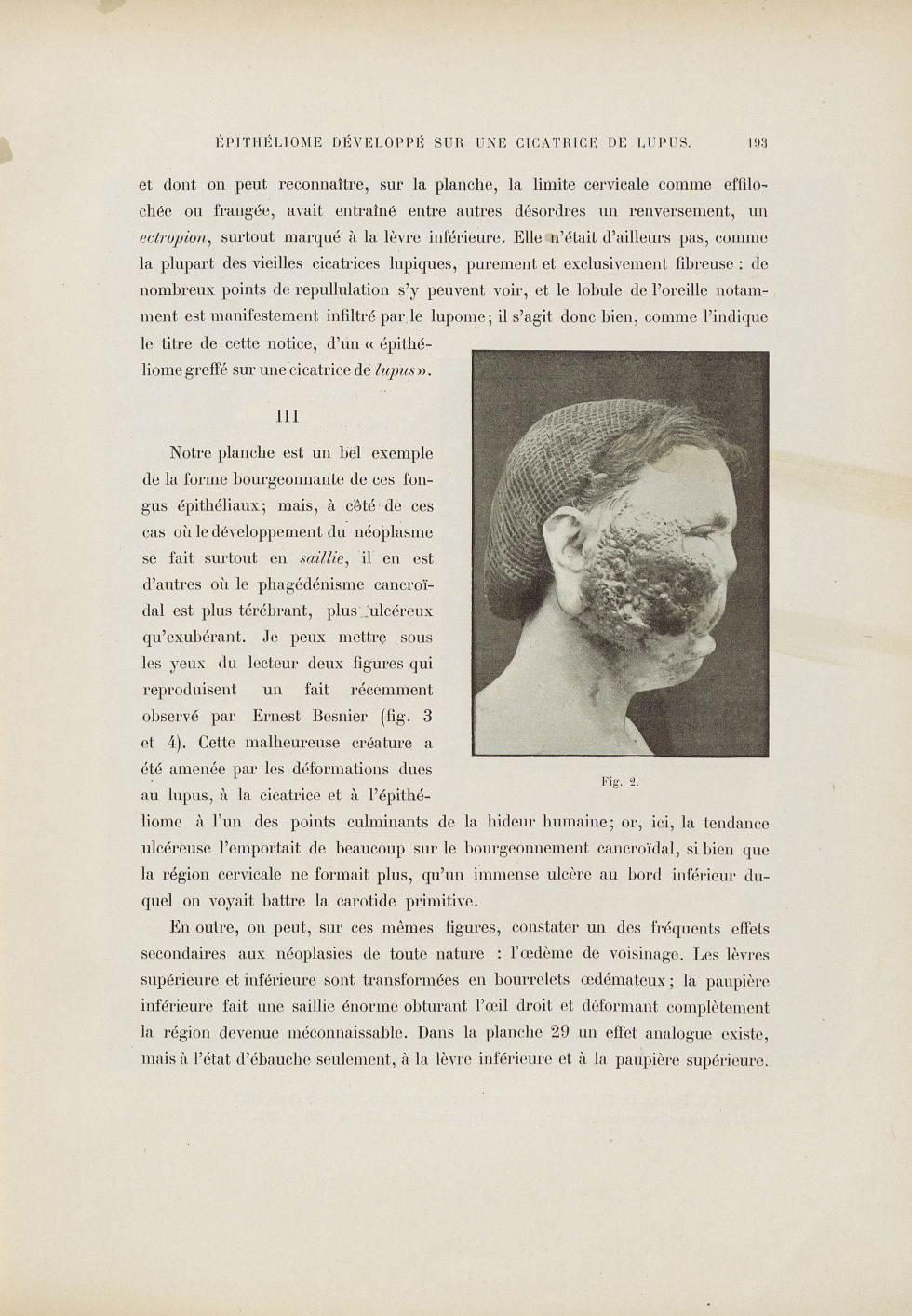 Fig. 2. [Énorme épithéliome occupant la partie préauriculaire droite] - Le musée de l'hôpital Saint- [...] - Dermatologie (peau). Visages (têtes). 19e siècle (France) - med01740x0229