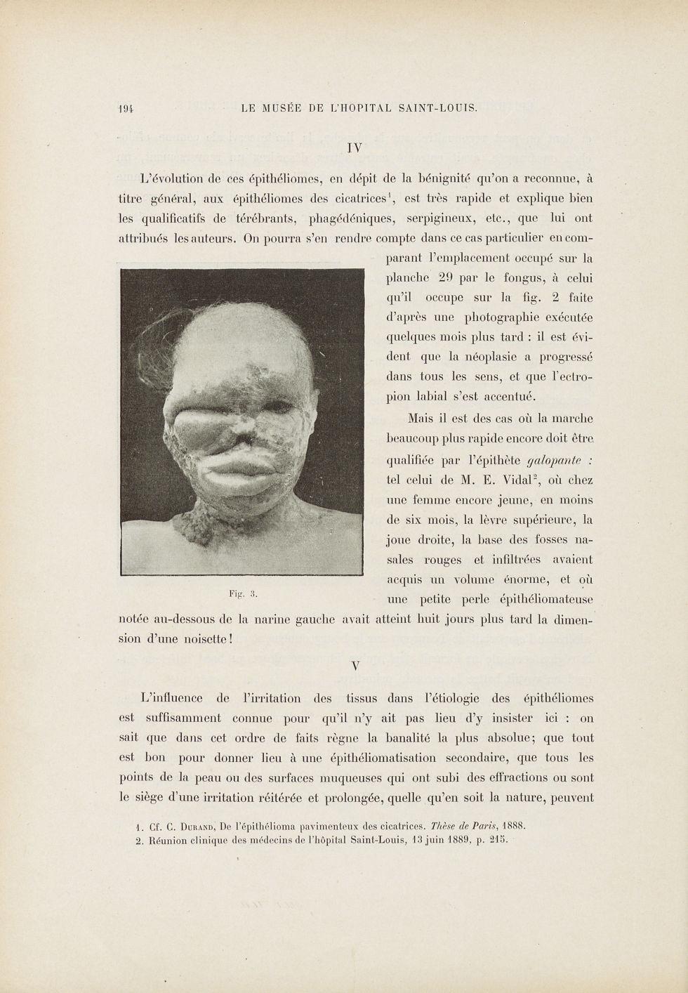 Fig. 3. [Epithéliome] - Le musée de l'hôpital Saint-Louis : iconographie des maladies cutanées et sy [...] - Dermatologie (peau). Visages (têtes). 19e siècle (France) - med01740x0230