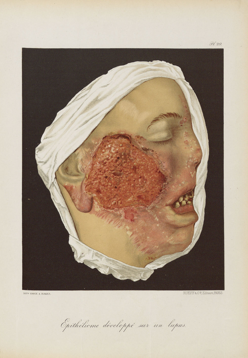 Epithéliome développé sur un lupus - Le musée de l'hôpital Saint-Louis : iconographie des maladies c [...] - Dermatologie (peau). Visages (têtes). 19e siècle (France) - med01740x0231