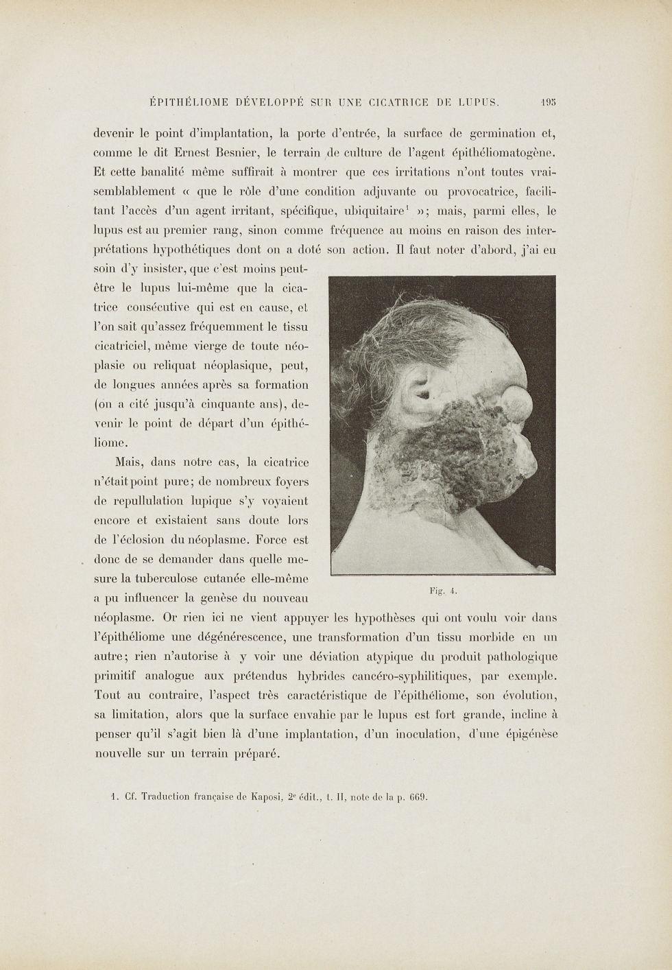 Fig. 4. [Epithéliome] - Le musée de l'hôpital Saint-Louis : iconographie des maladies cutanées et sy [...] - Dermatologie (peau). Visages (têtes). 19e siècle (France) - med01740x0232