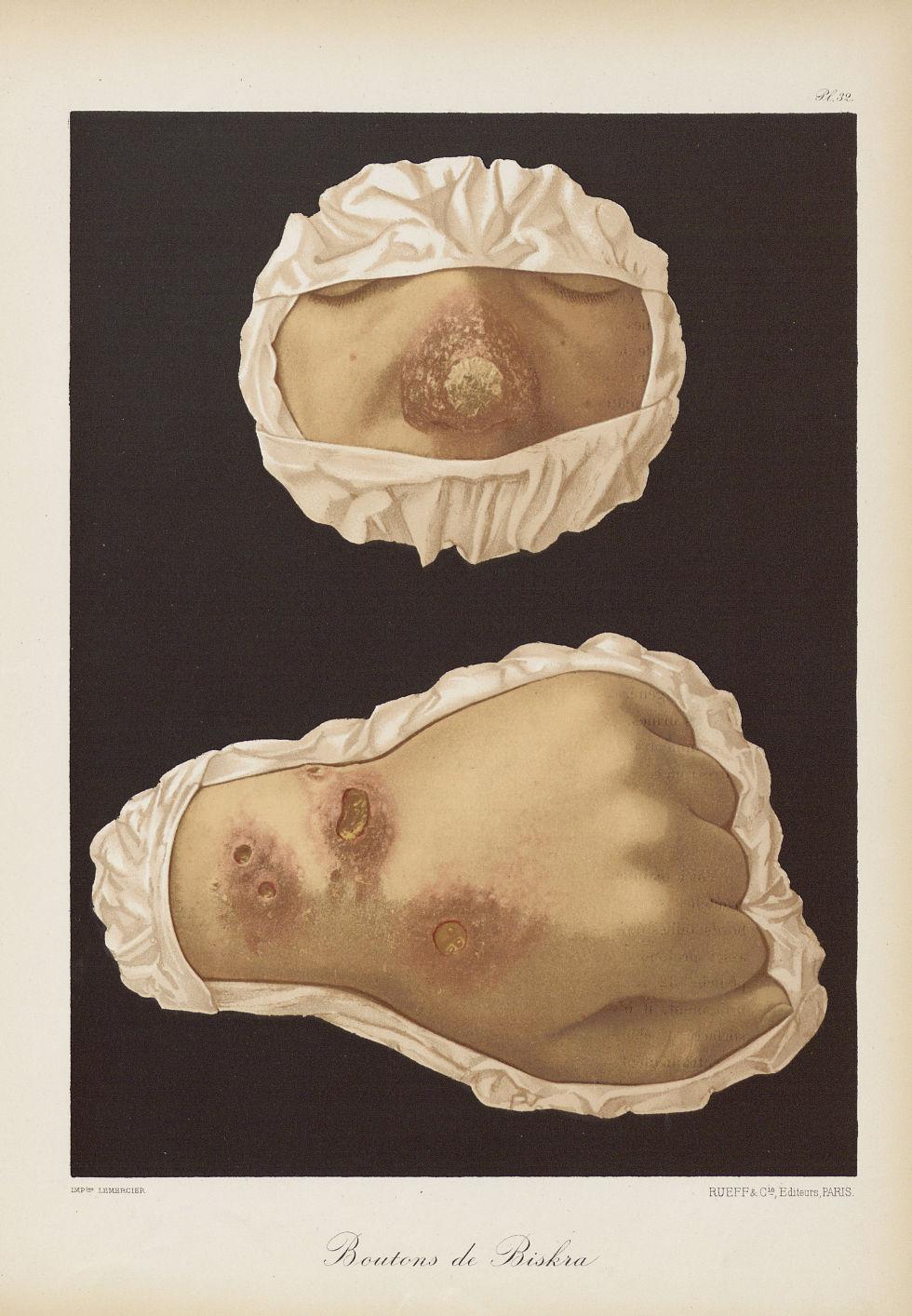 Boutons de Biskra - Le musée de l'hôpital Saint-Louis : iconographie des maladies cutanées et syphil [...] - Dermatologie (peau). Visages (têtes). Mains. 19e siècle (France) - med01740x0252