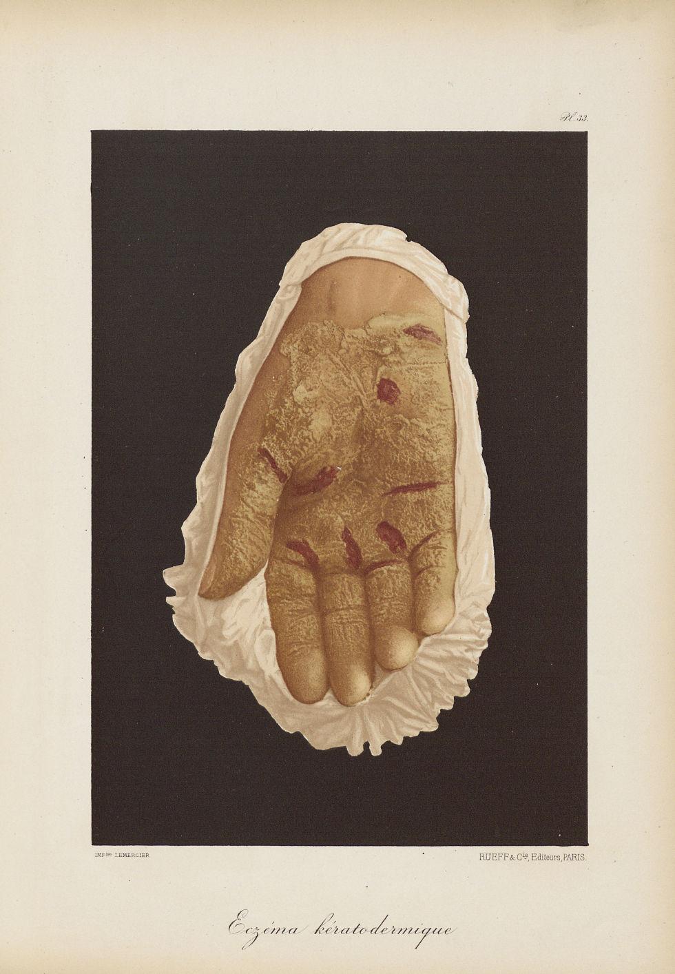 Eczéma kératodermique - Le musée de l'hôpital Saint-Louis : iconographie des maladies cutanées et sy [...] - Dermatologie (peau). Mains. 19e siècle (France) - med01740x0257