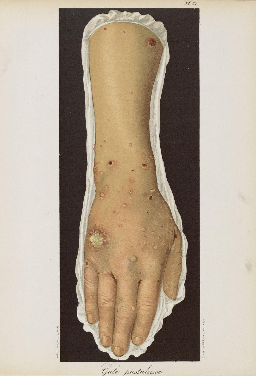 Gale pustuleuse - Le musée de l'hôpital Saint-Louis : iconographie des maladies cutanées et syphilit [...] - Dermatologie (peau). Membres supérieurs. Avant-bras, poignets, mains. 19e siècle (France) - med01740x0262