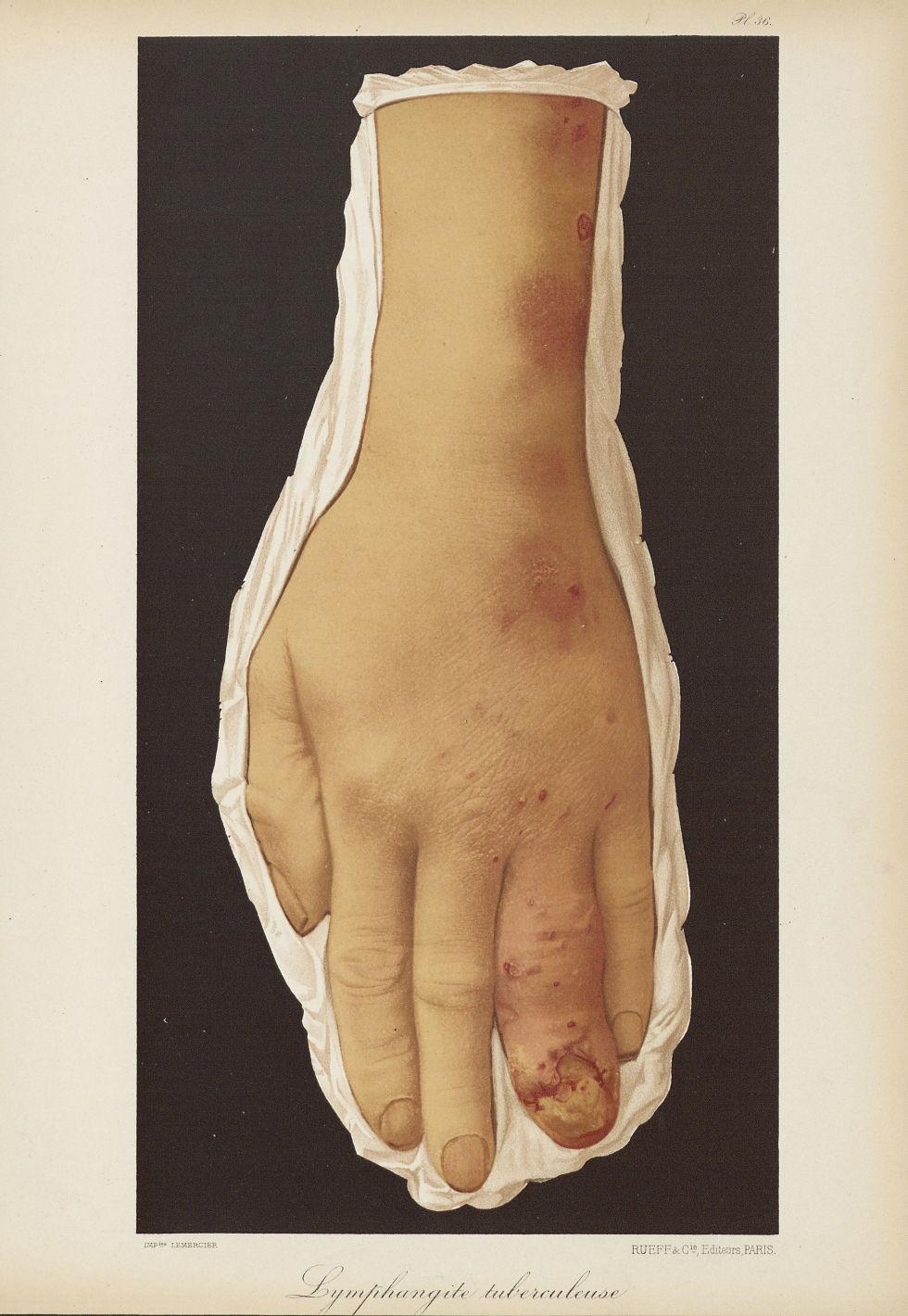 Lymphangite tuberculeuse - Le musée de l'hôpital Saint-Louis : iconographie des maladies cutanées et [...] - Dermatologie (peau). Avant-bras. Poignets, mains. 19e siècle (France) - med01740x0278