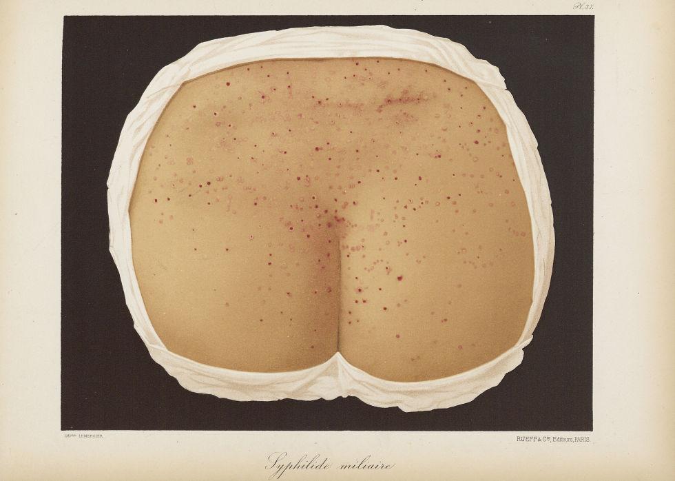 Syphilide miliaire - Le musée de l'hôpital Saint-Louis : iconographie des maladies cutanées et syphi [...] - Dermatologie (peau). Syphilis (maladies infectieuses). Maladies sexuellement transmissibles. Dos, fesses. 19e siècle (France) - med01740x0287