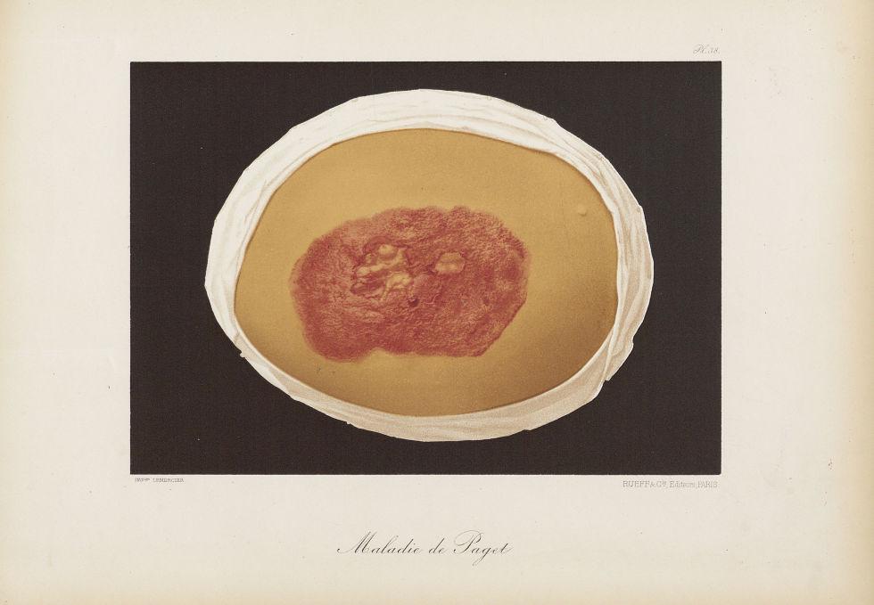 Maladie de Paget - Le musée de l'hôpital Saint-Louis : iconographie des maladies cutanées et syphili [...] - Dermatologie (peau). 19e siècle (France) - med01740x0298
