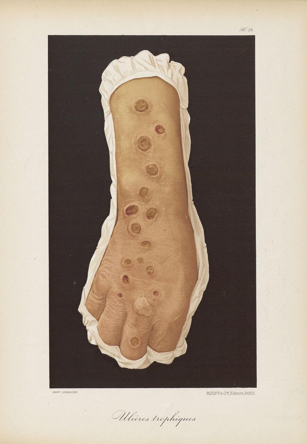 Ulcères trophiques - Le musée de l'hôpital Saint-Louis : iconographie des maladies cutanées et syphi [...] - Dermatologie (peau). Ulcères. Membres supérieurs. Poignets, mains. 19e siècle (France) - med01740x0307