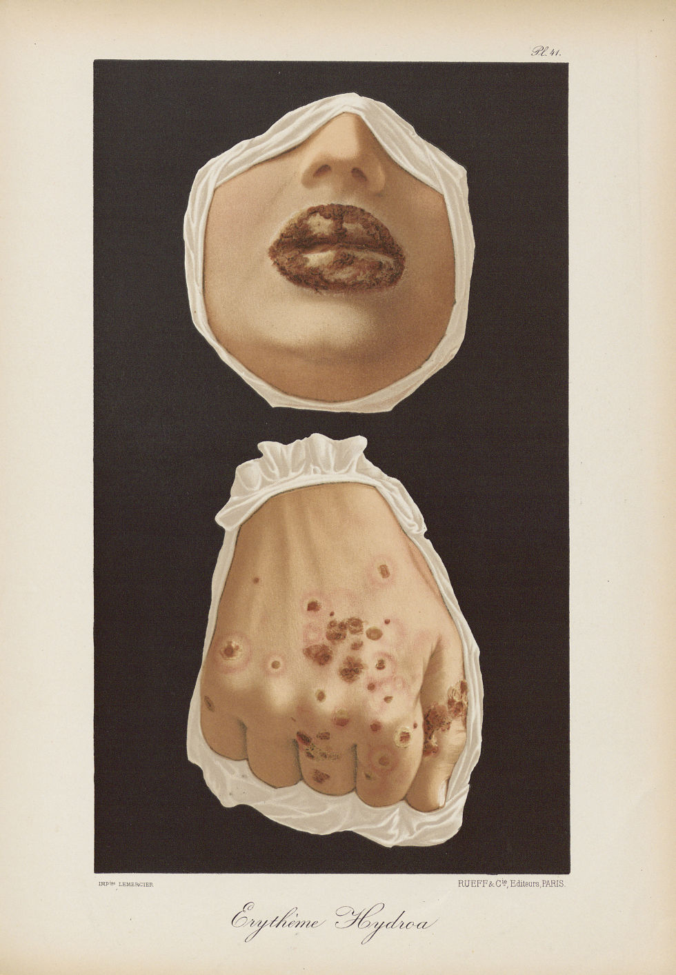 Erythème hydroa - Le musée de l'hôpital Saint-Louis : iconographie des maladies cutanées et syphilit [...] - Dermatologie (peau). Visages (têtes). Mains. 19e siècle (France) - med01740x0325