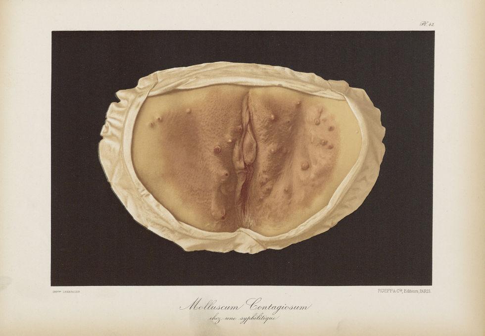 Molluscum contagiosum chez une syphilitique - Le musée de l'hôpital Saint-Louis : iconographie des m [...] - Dermatologie (peau). Syphilis (maladies infectieuses). Maladies sexuellement transmissibles. Organes génitaux femelles. 19e siècle (France) - med01740x0337