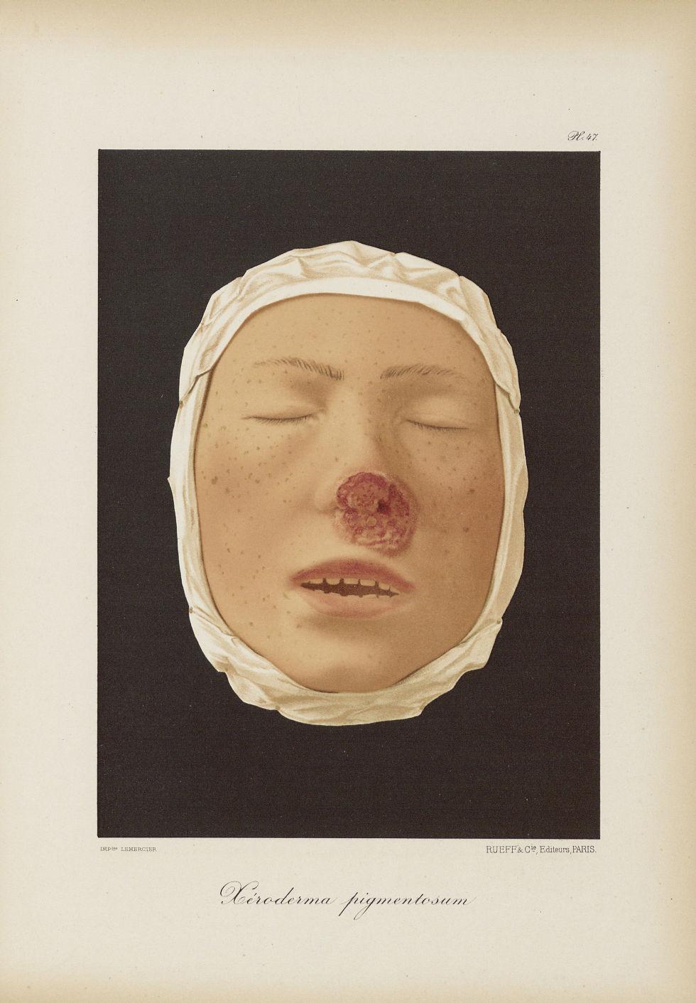 Xeroderma pigmentosum - Le musée de l'hôpital Saint-Louis : iconographie des maladies cutanées et sy [...] - Dermatologie (peau). Visages (têtes). 19e siècle (France) - med01740x0371