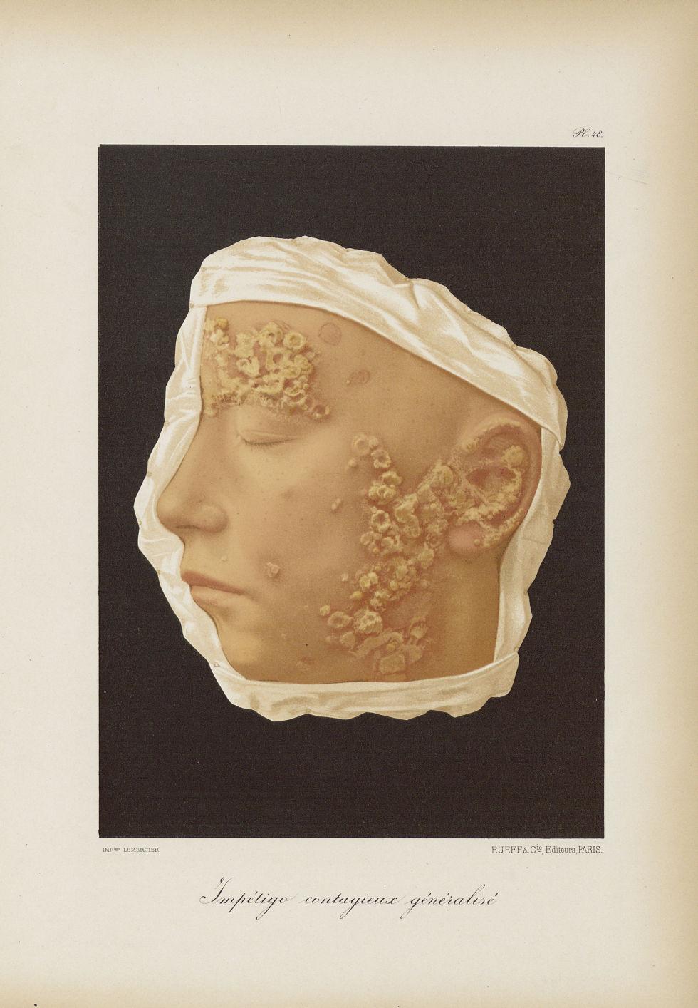 Impetigo contagieux généralisé - Le musée de l'hôpital Saint-Louis : iconographie des maladies cutan [...] - Dermatologie (peau). Visages (têtes). 19e siècle (France) - med01740x0376