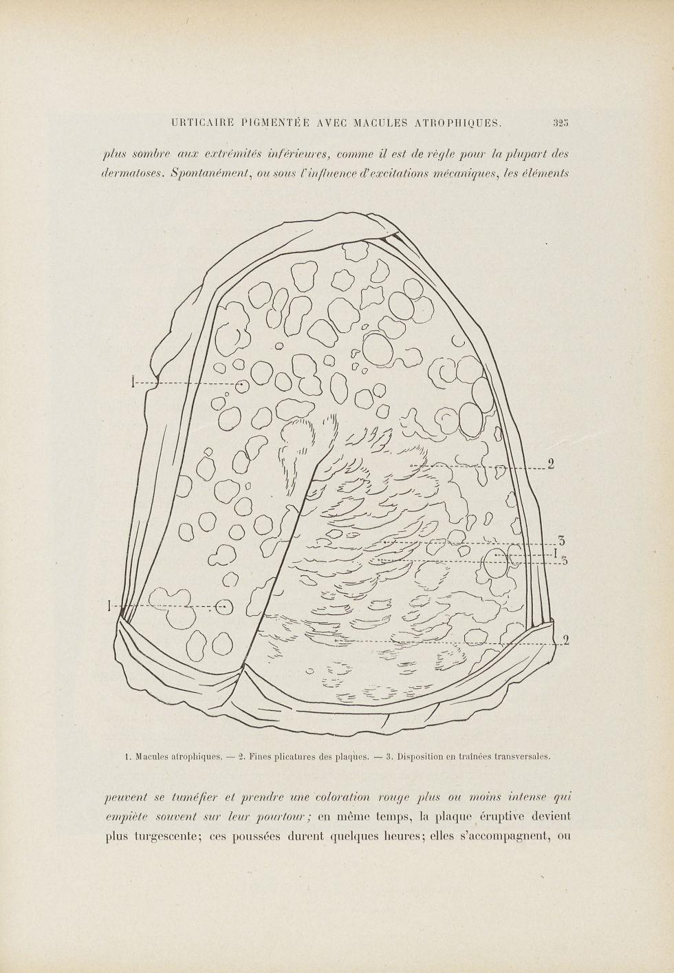 Urticaire pigmentaire - Le musée de l'hôpital Saint-Louis : iconographie des maladies cutanées et sy [...] - Dermatologie (peau). Dos. Membres supérieurs. Épaules, bras. 19e siècle (France) - med01740x0381