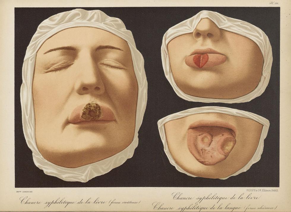 Chancre syphilitique de la lèvre (forme crouteuse). Chancre syphilitique de la lèvre. Chancre syphil [...] - Dermatologie (peau). Syphilis (maladies infectieuses). Maladies sexuellement transmissibles. Visages (têtes). Lèvres. Langues (bouches). 19e siècle (France) - med01740x0396