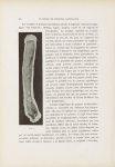 Fig. 1. [Gommes tuberculeuses lymphangitiques consécutives à une dactylite tuberculeuse] - Le musée  [...]