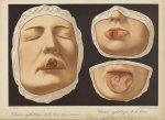 Chancre syphilitique de la lèvre (forme crouteuse). Chancre syphilitique de la lèvre. Chancre syphil [...]