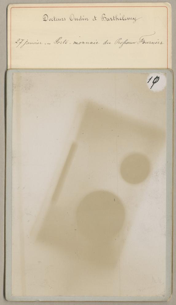 27 janvier. - Porte-monnaie du Professeur Fournier - [Collection de 65 photoélectrographies, premièr [...] - Radiographie. Rayons X. France. Anatomie. 19e siècle - med01753x0011