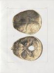 Planche 18 - Têtes - Surface intérieure du crâne. Adulte (grandeur naturelle) - Traité complet de l' [...]
