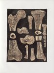 Planche 43 - Détails de tissu d'os - Traité complet de l'anatomie de l'homme, par les Drs Bourgery e [...]