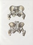 Planche 51 - Articulations pelviennes et coxo-fémorales - Traité complet de l'anatomie de l'homme, p [...]
