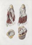 Planche 146 - Muscles du pied - Face plantaire - Traité complet de l'anatomie de l'homme, par les Dr [...]