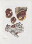 Planche 151 - Aponévrose palmaire et coupes transversales des muscles et des cloisons aponévrotiques [...]
