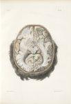 Planche 23 - Coupes horizontales du cerveau, vues par le plan inférieur - Traité complet de l'anatom [...]