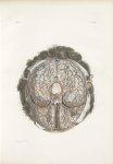 Planche 29 - Vaisseaux sanguins de la base du cerveau - Traité complet de l'anatomie de l'homme, par [...]