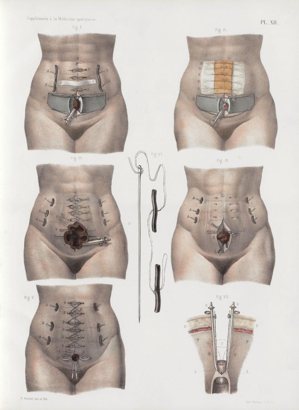 Planche XII - Ovariotomie ; amputation de l'utérus par la gastrotomie ; procédé de M. Koeberlé - Tra [...] - Anatomie humaine. Chirurgie. Organes génito-urinaires. 19e siècle - med02083x07bisx0170