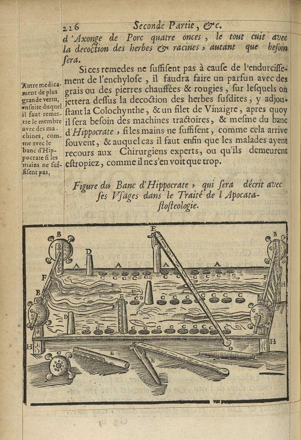 Figure du banc d'Hippocrate, qui sera décrit avec ses usages dans le Traité de l'Apocatastosteologie [...] -  - med05207x0255