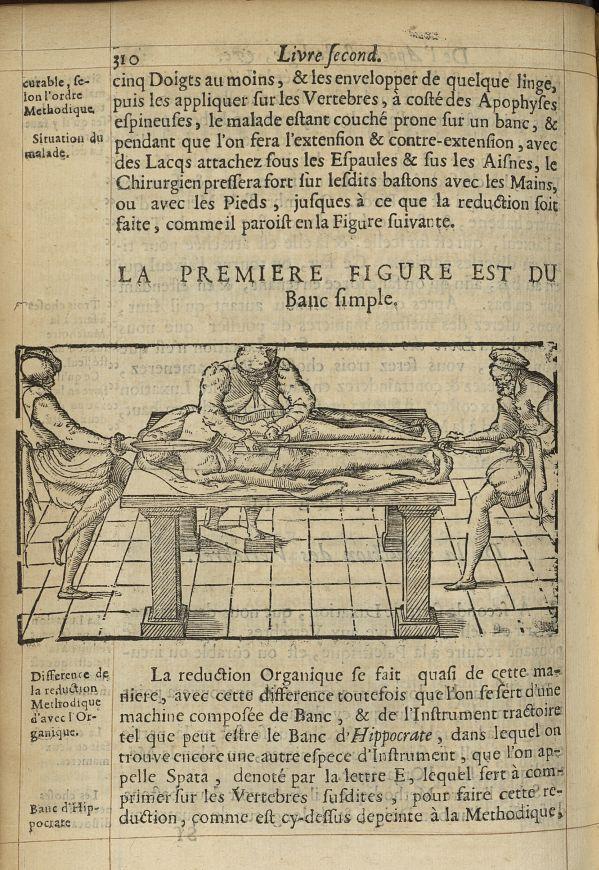 La premiere Figure est du banc simple - L'Oeconomie chirurgicale, pour le r'habillement des os du co [...] -  - med05207x0339
