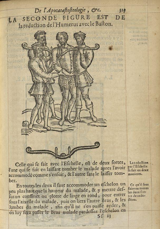La seconde Figure est de la reduction de l'humerus avec le baston - L'Oeconomie chirurgicale, pour l [...] -  - med05207x0342